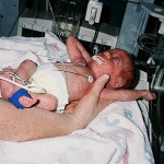 How to Survive Preemie Twins and the NICU