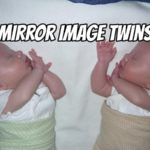 Do You Have Mirror Image Twins? (Here's how you know)