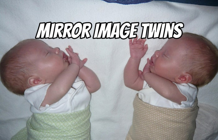 Do You Have Mirror Image Twins?